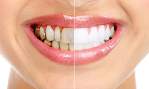 зубной камень,причины,симптомы,способы отбеливания