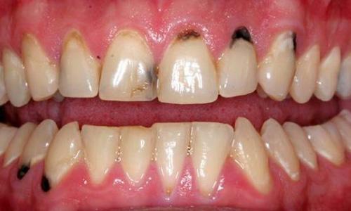 Как спасти гнилые зубы: почему они гниют, что делать и как лечить