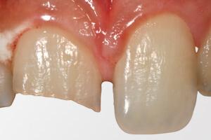 Механическое повреждение зуба